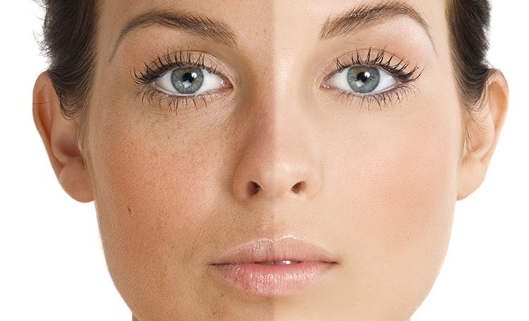 Terapie Faciala cu IPL